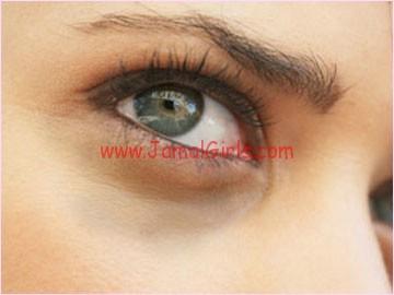 التخلص من الهالات السوداء تحت العينين