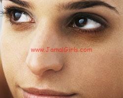 السواد حول العيون مسببات وعلاج