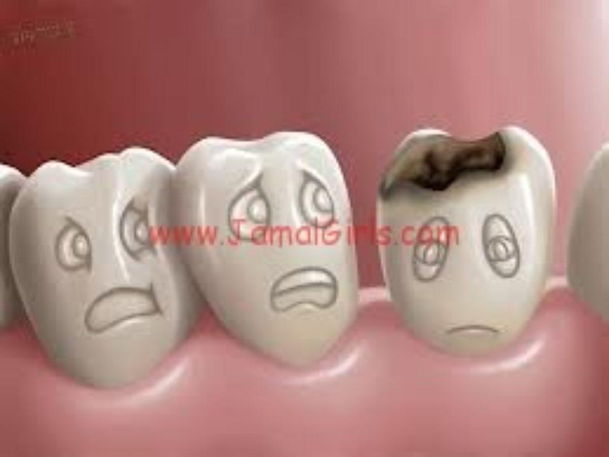 علاج تسوس االاسنان والوقاية منه