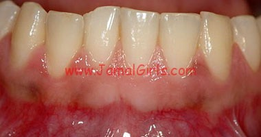 الاسنانواللثة والفم