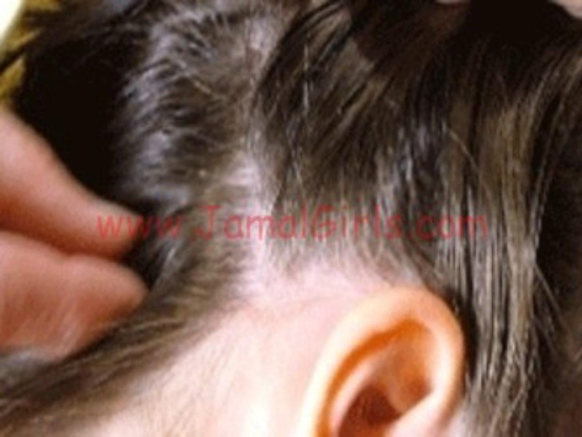 خلطة زيت الزيتون لعلاج حكة الرأس