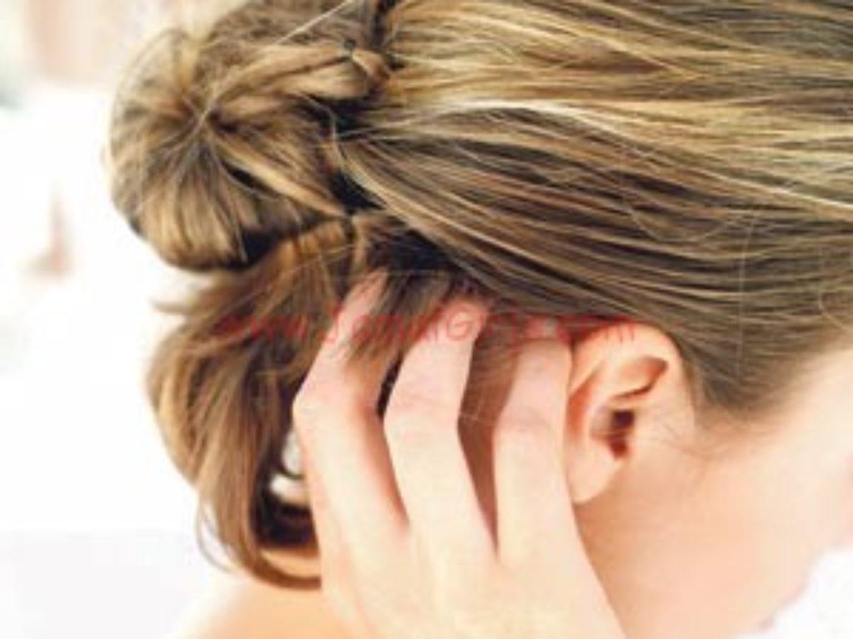 قناع لعلاج حكة الرأس