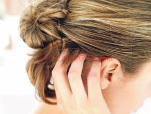 مشاكل فروة الرأس